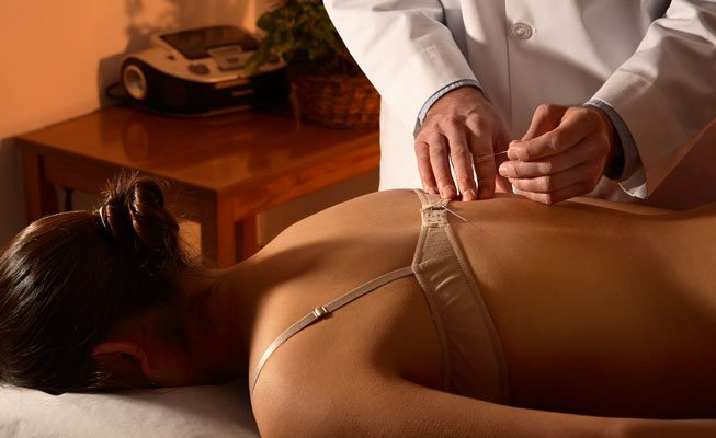 Woman receiving accupuncture